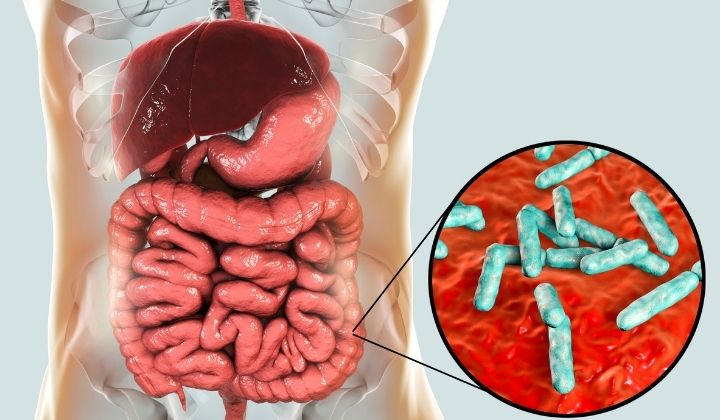 Gut Microbiome Link to Deadly Lung Disease